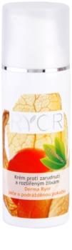 RYOR Derma Ryor krém proti zarudnutí a rozšířeným žilkám s probiotiky