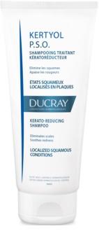 Ducray Kertyol P.S.O. sampon delicat anti matreata
