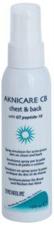 Synchroline Aknicare  CB емулсия в спрей за редуциране проявите на акне по гърдите и гърба