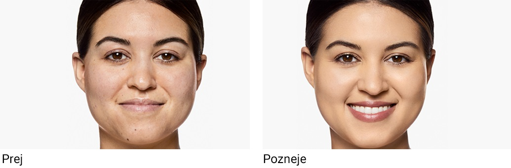 Clinique Foundations SP Before/After