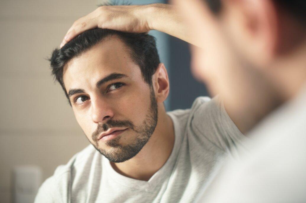 Como acabar com a queda de cabelo masculina