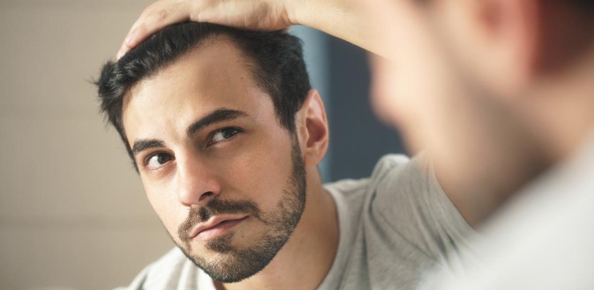 chute cheveux hommes
