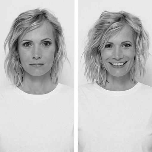 <center><strong id=W_hair_loss_chronicle>Queda de cabelo crónica nas mulheres</strong></center>