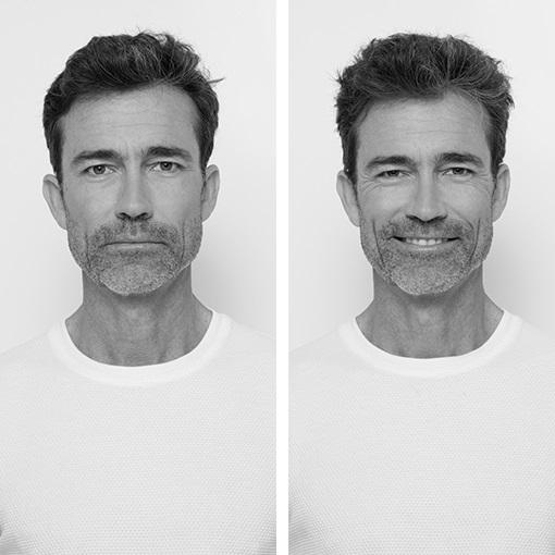 <center><strong id=M_hair_loss_chronicle>Queda de cabelo crónica nos homens</strong></center>